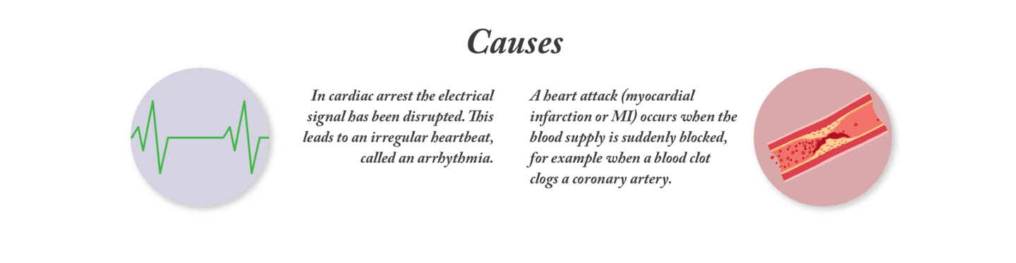 The causes of a cardiac arrest