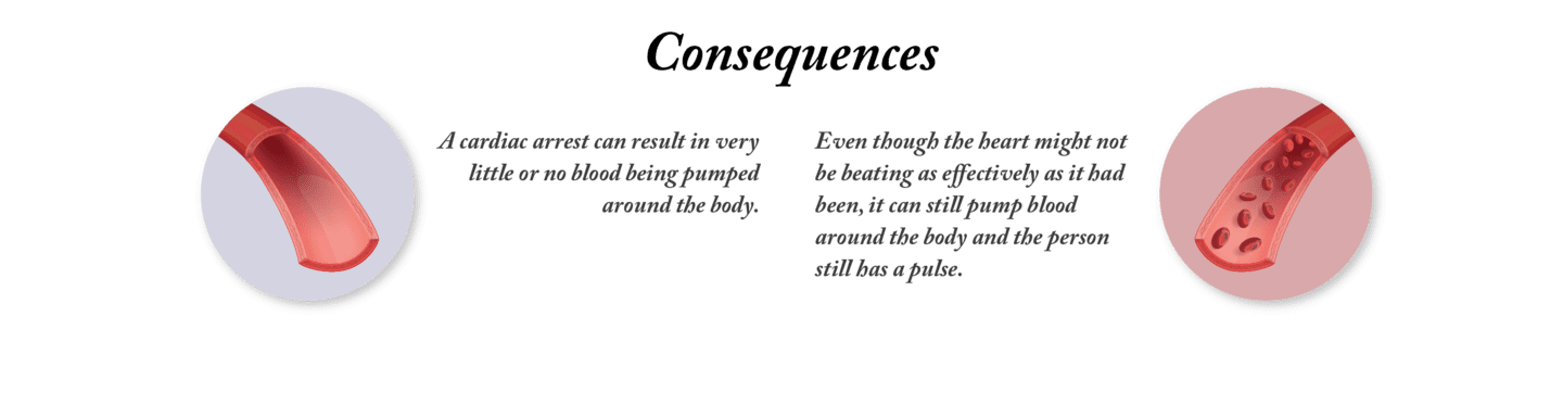 The consequences of a cardiac arrest