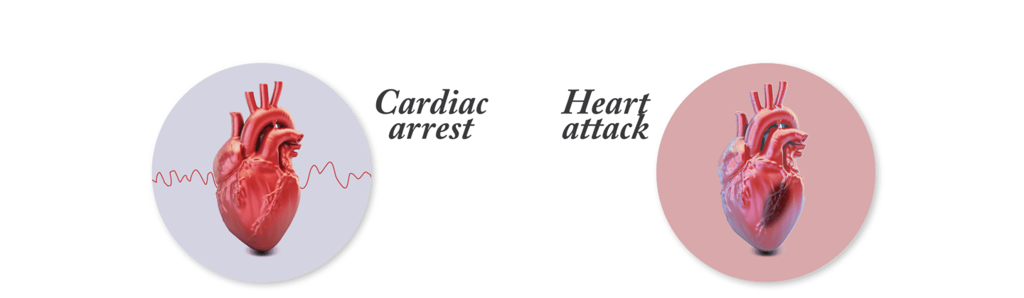 Cardiac arrest and heart attack